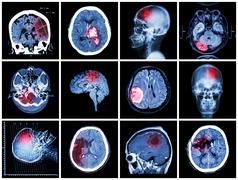 Collection of brain disease ( CT scan and MRI of brain : show cerebral infarc - stock photo