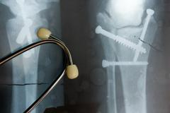 Medical stethoscope and x-ray or roentgen image. Close-up shot of lung Stock Photos