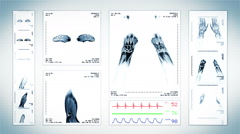 Arm MRI Scan. White. 3 in 1. Top, front, lateral view and ECG display. Loopable. Stock Footage