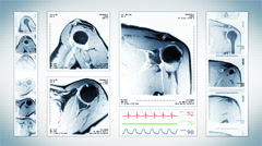 Shoulder MRI Scan. White. 4 in 1. Top, front, lateral view. ECG display. Stock Footage