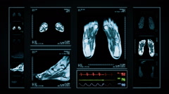 Foot MRI Scan. Blue. 3 in 1. Top, front, lateral view and ECG display. Loopable. Stock Footage