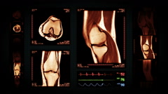 Knee MRI Scan. Amber. 4 in 1. Top, front, lateral view and ECG display. Stock Footage