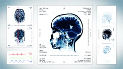 Brain, Knee and Neck MRI Scan. Grey. 3 videos in 1 file. Loopable. Stock Footage