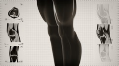 Highly detailed knee scan. Loopable. Black/white. White background. Stock Footage