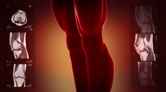 Highly detailed knee scan. Loopable. Red and blue. Red background. - stock footage