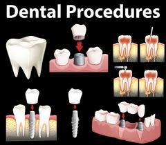 Dentale procedures of making fake tooth Stock Illustration