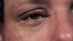 Infected eye flinching painfully Stock Footage