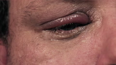 Dropping eye drops into infected eye - stock footage