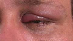 Infected eye uncomfortable, 4K Stock Footage