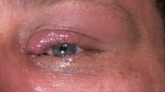 Eye drops in infected eye, 1, 4K Stock Footage