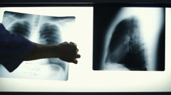 Doctor Looking At The Chest X-Rays  Stock Footage