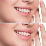 Female lips before and after augmentation - stock photo