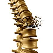Spine Fracture - stock illustration