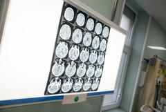 Different brain activity is seen on a x-ray screen in a neurology clinic in t Stock Photos