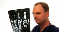 Doctor Looking At X-Rays Stock Footage