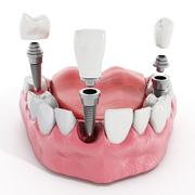 Stock Illustration of Dental implant detail