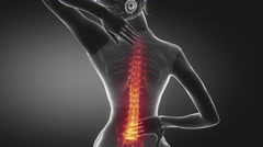 Female backbone pain - spine hurt concept Stock Footage