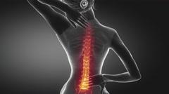 Female backbone pain - spine hurt concept - stock footage