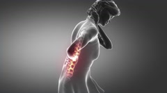 Female backbone hurt injury -  spine concept Stock Footage