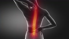 Pain in spine proceed to neck region Stock Footage