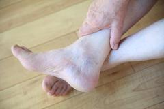 Senior man has spider veins on ankle - stock photo