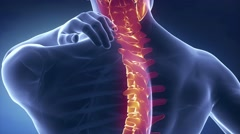 Spine injury pain in sacral and cervical region concept Stock Footage