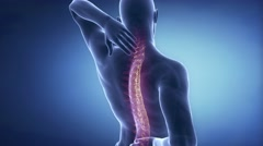 Man spine hurt - backbone injury pain concept Stock Footage