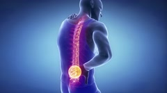 Male backbone injury pain - spine hurt concept Stock Footage