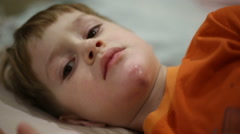 The boy was injured chin - stock footage