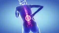 Backbone hurt with visible spine anatomy - stock footage