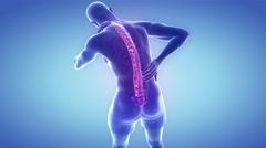 Spine pain hurt - backbone concept - stock footage