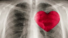 Cartoon x-ray of chest and beating heart. (loop ready file) - stock footage