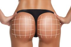 plastic surgery, beauty, people and bodycare concept. female ass with lines - stock photo