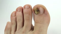 Toenails with fungal infection. Sick nail. Fungus of big toe Stock Footage