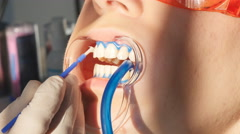 Whitening teeth closeup in slow motion Stock Footage