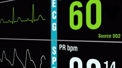 Patient monitor displays medical exam vital signs - stock footage