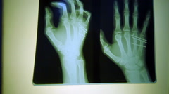 Human  finger  scan,tech medical X-ray scanning Stock Footage