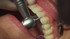 Grinding dental veneers Stock Footage