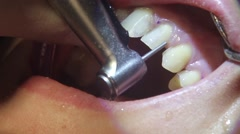 Grinding teeth for dental veneers. Aesthetic dentistry. Stock Footage