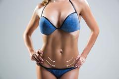 Body correction with the help of plastic surgery . Woman belly marked Stock Photos