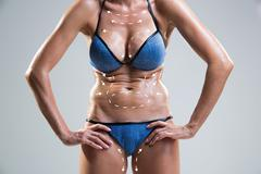 Body correction with the help of plastic surgery . Woman belly marked - stock photo