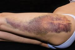 Bruise on wounded woman leg Stock Photos