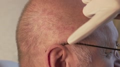 head of a man, the skin irritation, not thick hair - stock footage