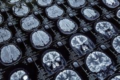 Magnetic resonance imaging Stock Photos
