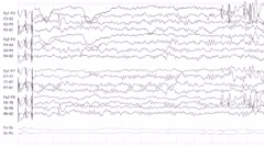 EEG of Epileptic Seizure 2 (Loopable) Stock Footage