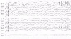 EEG of Epileptic Seizure 2 (Loopable) - stock footage