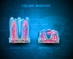 Celiac disease Stock Illustration