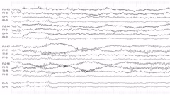 EEG of Drowsy Patient (Loopable) Stock Footage