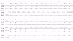 EEG of Brain Death Patient (Loopable) Stock Footage