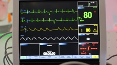 Stock Video Footage of Heart monitor with curves oxygen saturation blood pressure ecg pulmonary artery